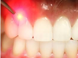 Laser Dentistry at Creative Edge Dental